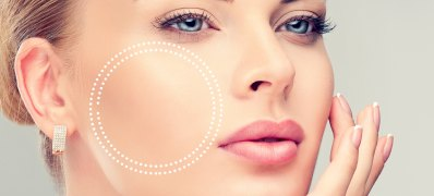 Bichectomia: a cirurgia para afinar o rosto